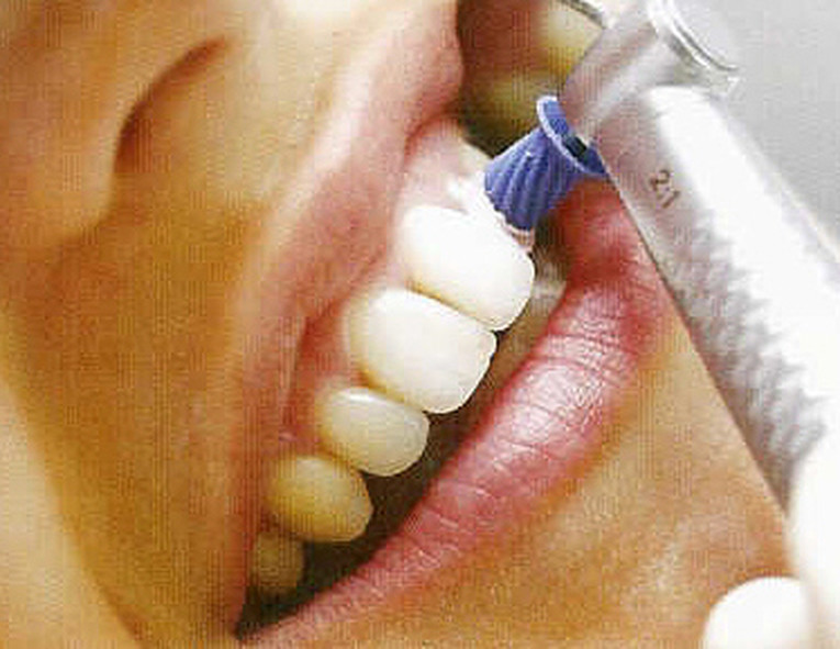 Zahnmedizinische Prophylaxeassistentin m/w